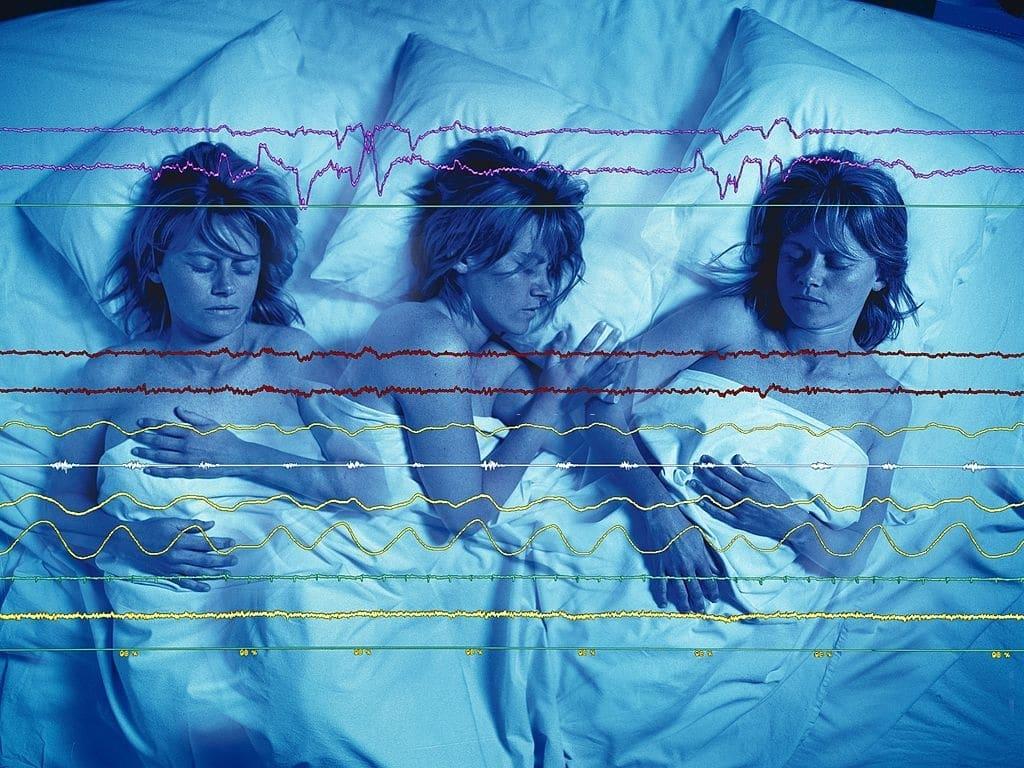 La fase REM es una de las fases del sueño más importantes. Se caracteriza por la presencia de una elevada actividad cerebral.